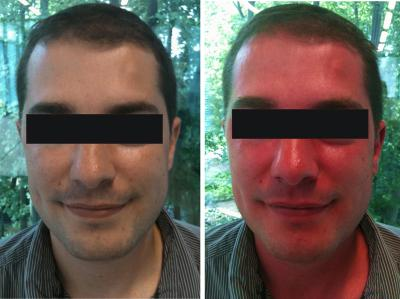 Niacin-Flush-Pi-before-After