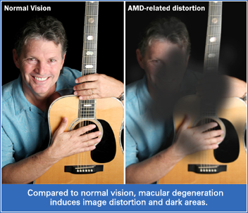 normal-macular-degeneration-image-central-vision-loss
