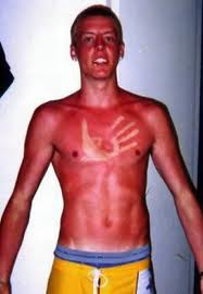 ouch-sunburn-oh-boy