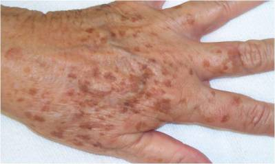 age-spots-lipofuscion-pigment-back-of-hand