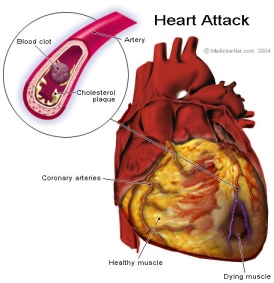 heart-drawing-showing-anatomy-of-heart-attack