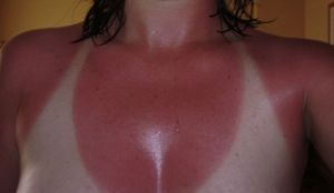 girl-with-horrible-sunburn-